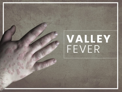 treatment valley fever